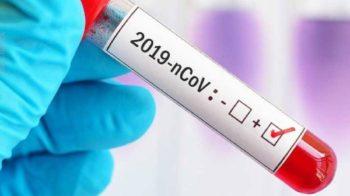 coronavirus in provincia